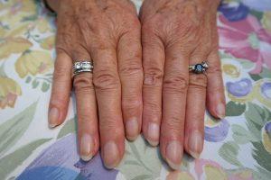 Ausreichend Schwefel stellt sicher, dass man auch im Alter schöne Fingernägel hat