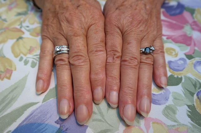 Ausreichend Schwefel, wie MSM, stellt sicher, dass man auch im Alter schöne Fingernägel hat